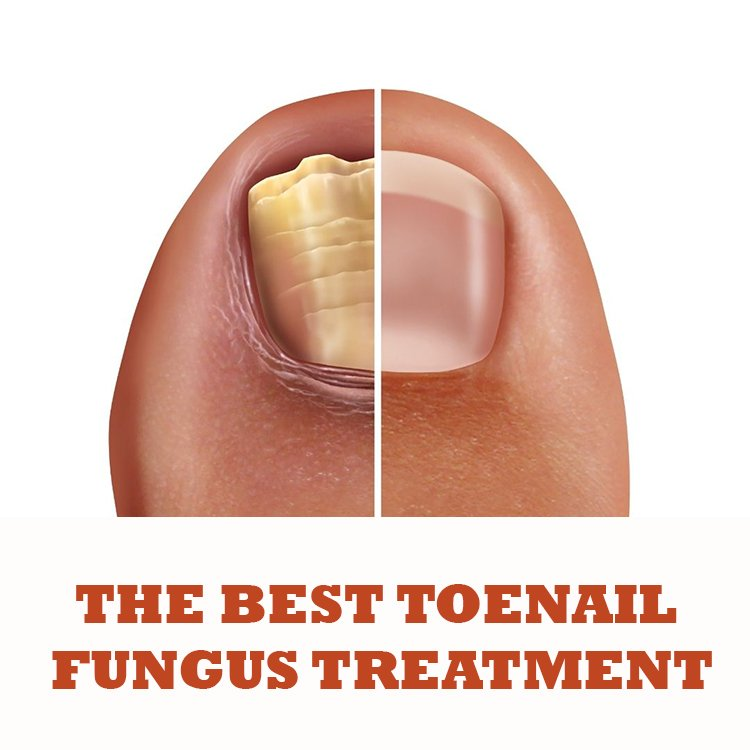 The best toenail fungus treatment
