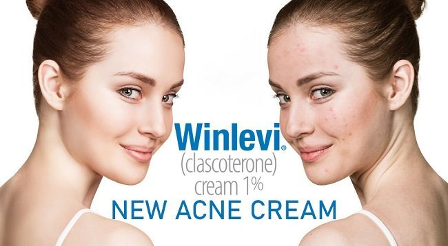 Clascoterone (Winlevi) - a new cream for treatment of acne (approved in US)
