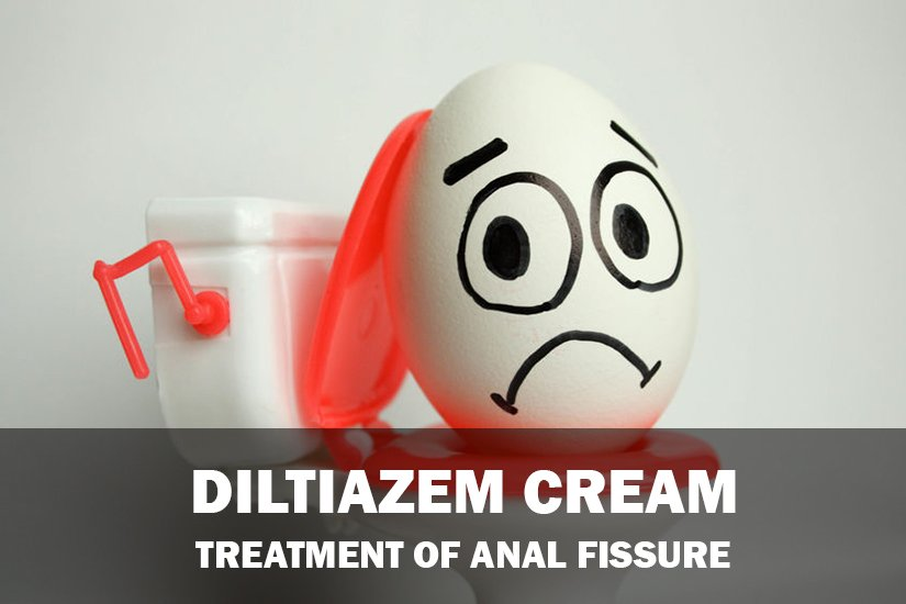 Diltiazem cream for anal fissures reviewed